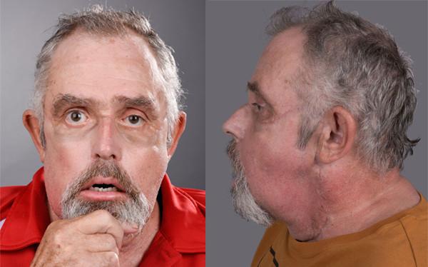 M. Maurice Desjardins, le greffé du visage, avant et après l'intervention – vues de face et de profil (photos : Dr Daniel Borsuk)